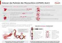 Infografia cancer pulmon no microcitico